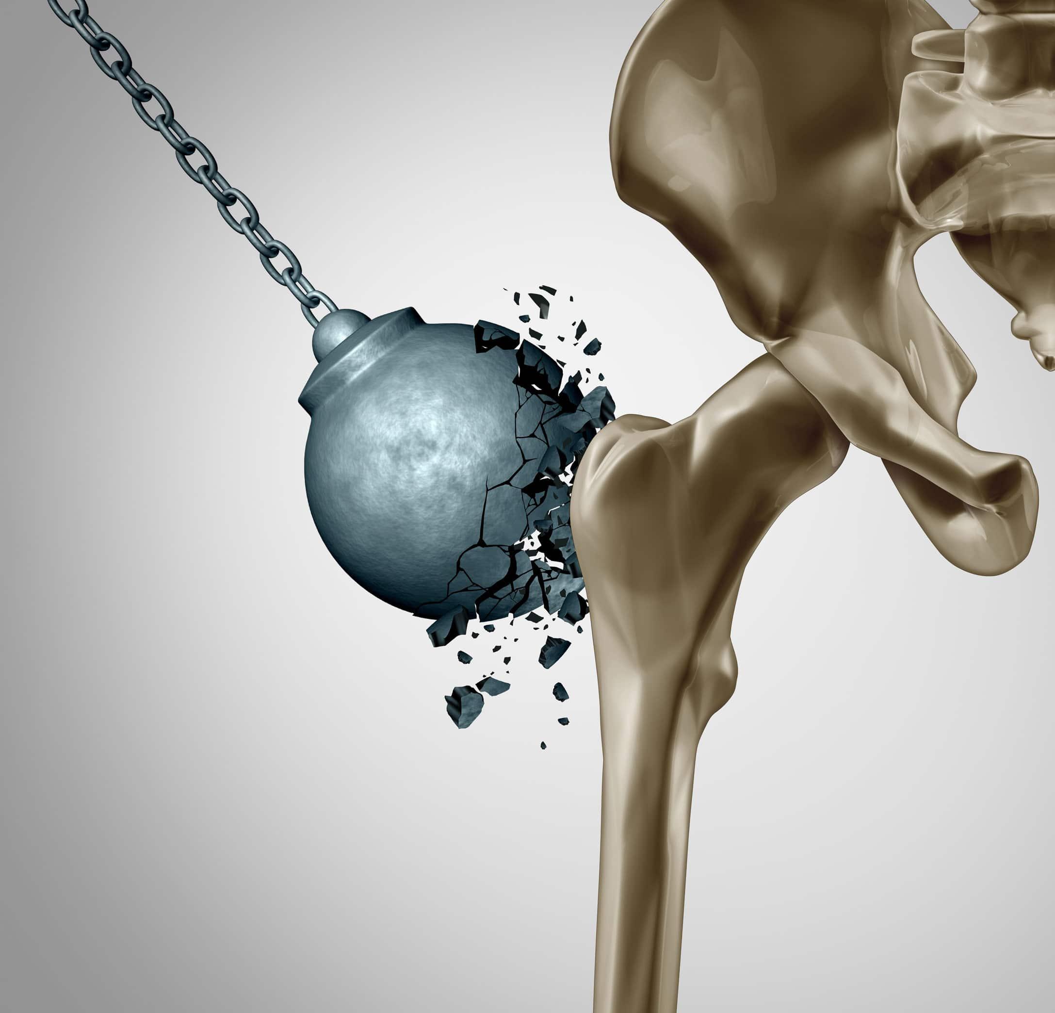 cure naturali rimedi osteoporosi