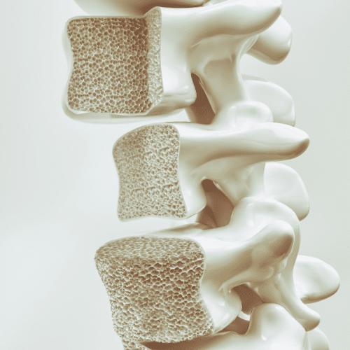 osteoporosi cos'è