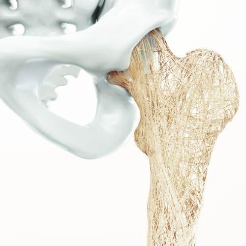 osteoporosi sintomi cause NEOGELA