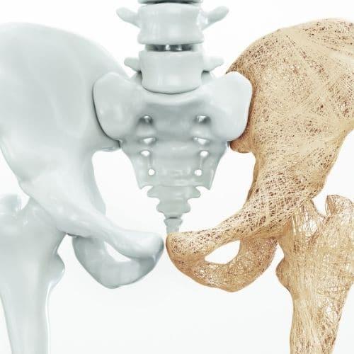 quiz osteoporosi NEOGELA