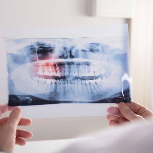 osteonecrosi mascellare ed interventi odontoiatrici